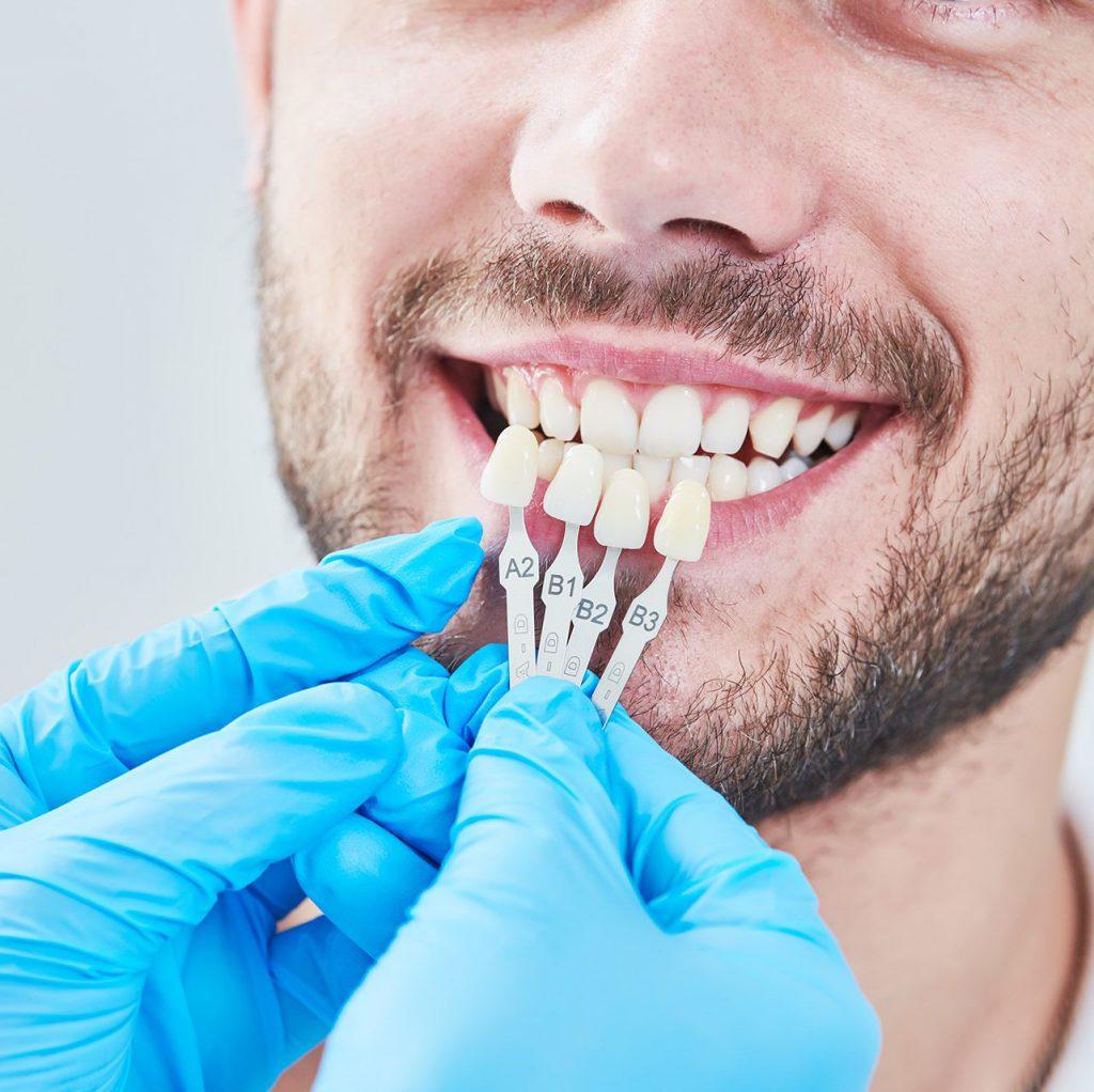 Zahnfarbbestimmung